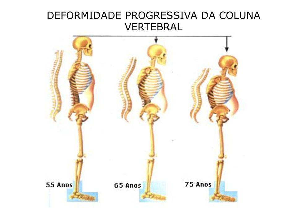 DEFORMIDADE PROGRESSIVA DA COLUNA VERTEBRAL