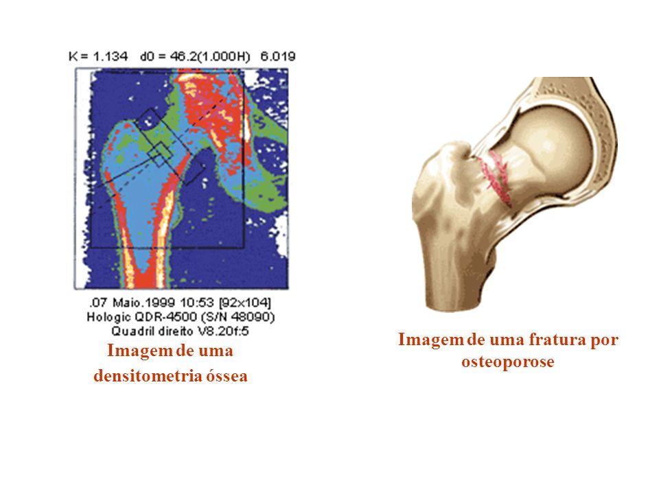 Imagem de uma fratura por osteoporose
