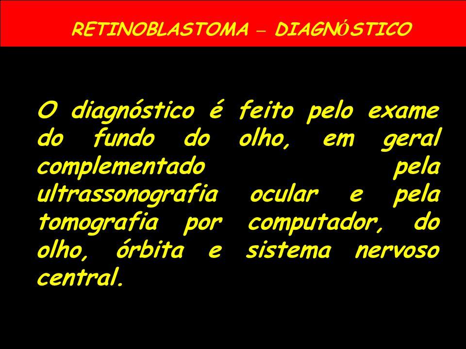RETINOBLASTOMA – DIAGNÓSTICO