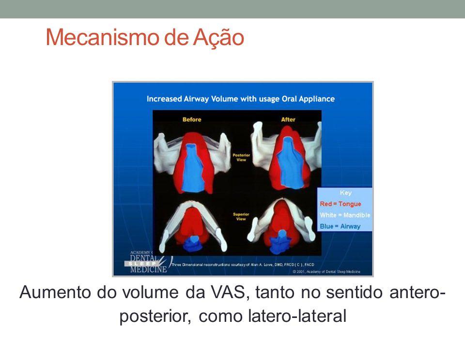 Mecanismo de Ação Aumento do volume da VAS, tanto no sentido antero-