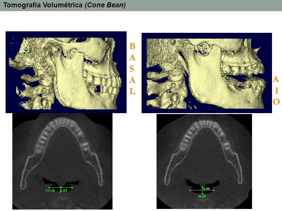 Tomografia Volumétrica (Cone Bean)