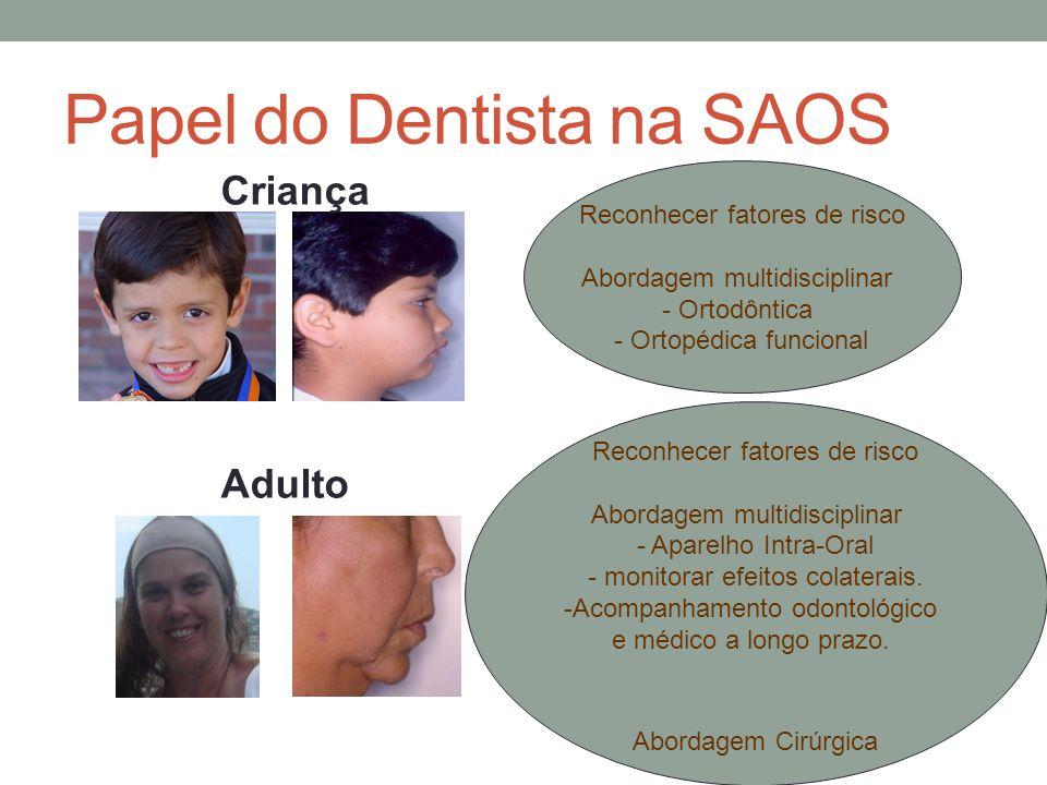 Papel do Dentista na SAOS