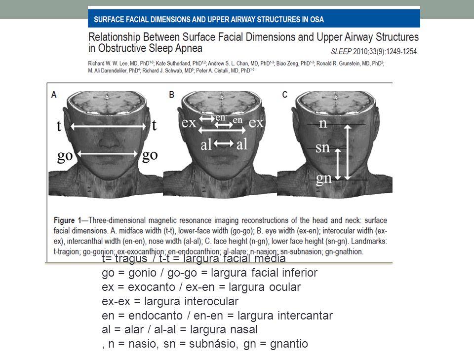 t= tragus / t-t = largura facial média