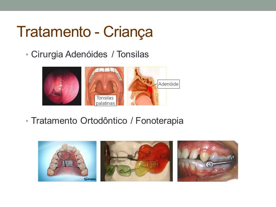 Tratamento - Criança Cirurgia Adenóides / Tonsilas