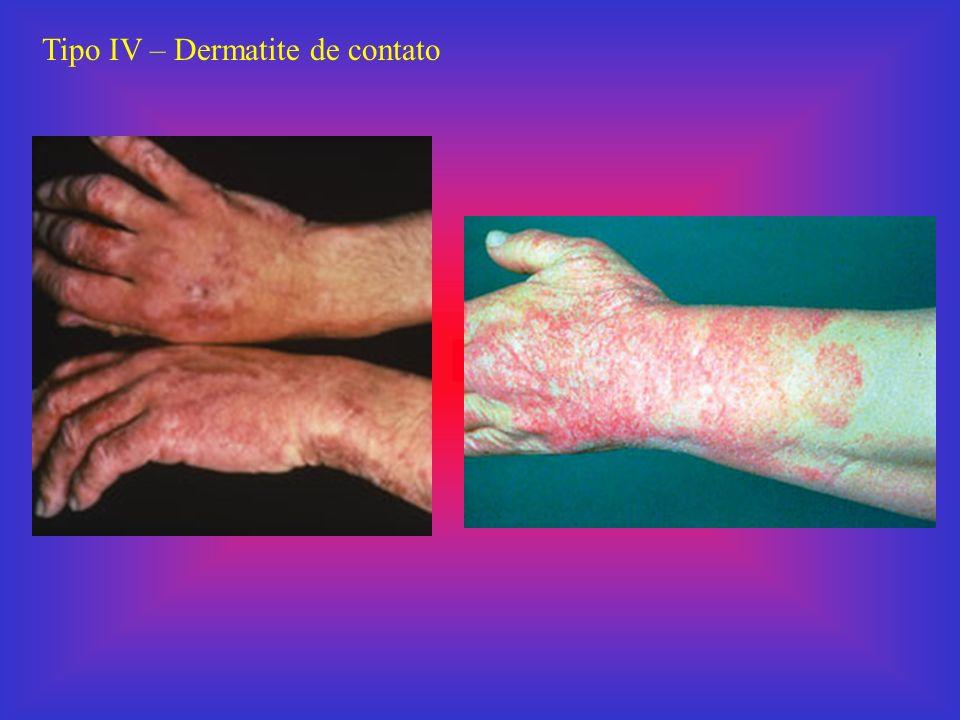 Tipo IV – Dermatite de contato