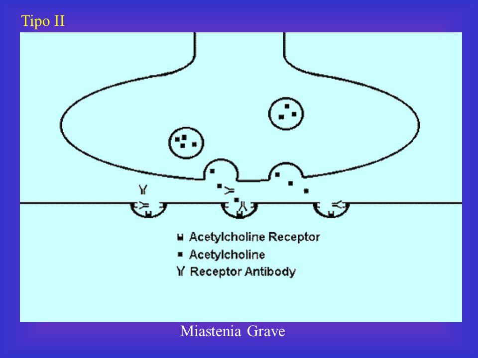 Tipo II Miastenia Grave