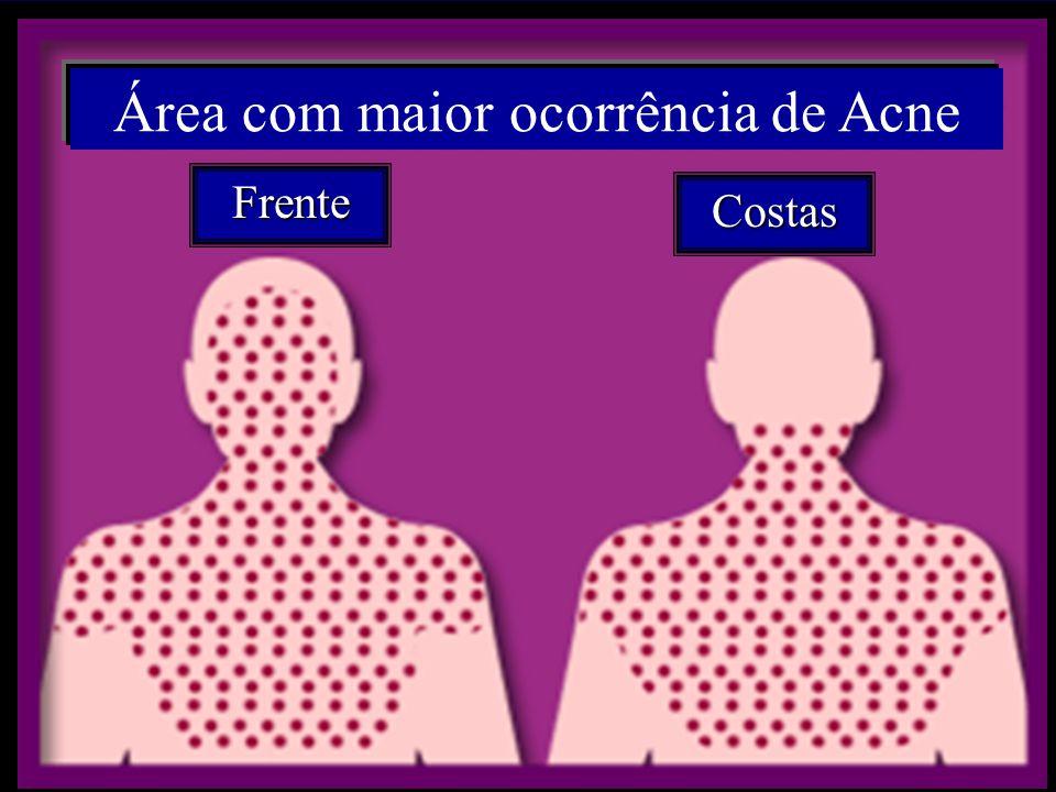 Área com maior ocorrência de Acne