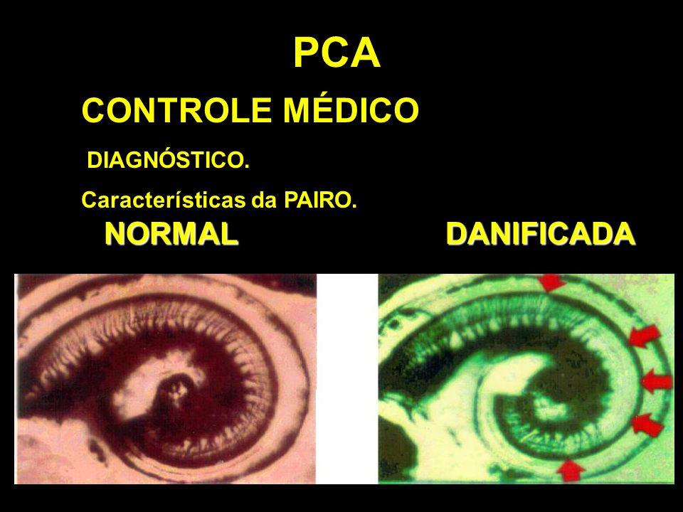 PCA CONTROLE MÉDICO NORMAL DANIFICADA DIAGNÓSTICO.