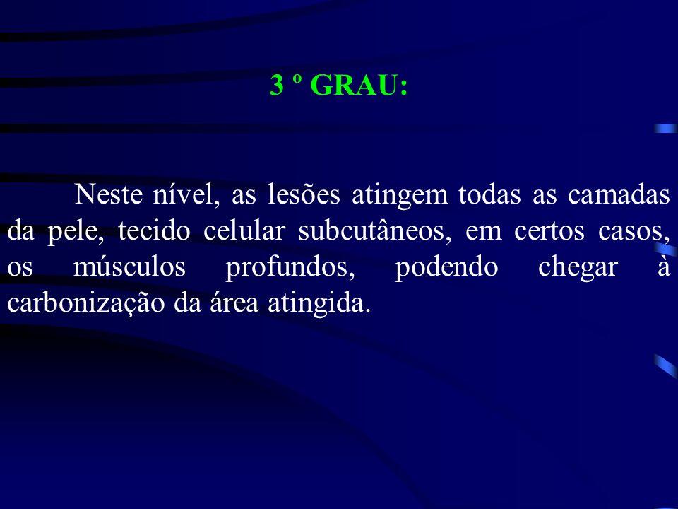 3 º GRAU: