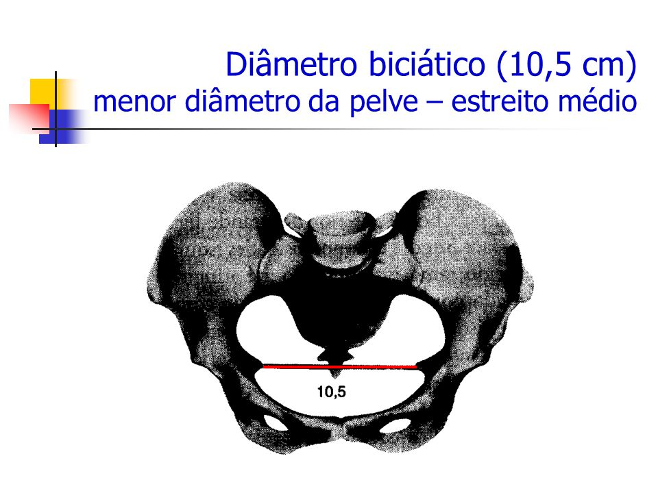 Diâmetro biciático (10,5 cm) menor diâmetro da pelve – estreito médio