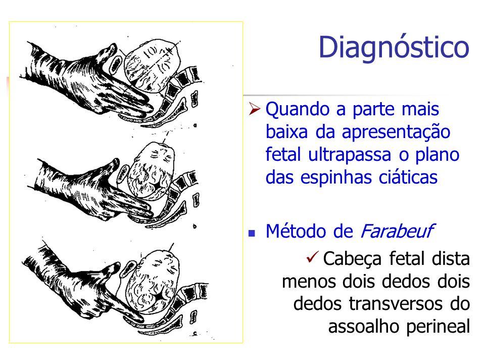 Diagnóstico Quando a parte mais baixa da apresentação fetal ultrapassa o plano das espinhas ciáticas.