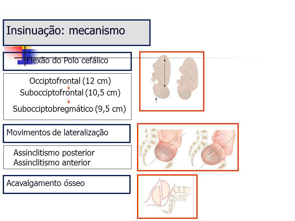 Insinuação: mecanismo