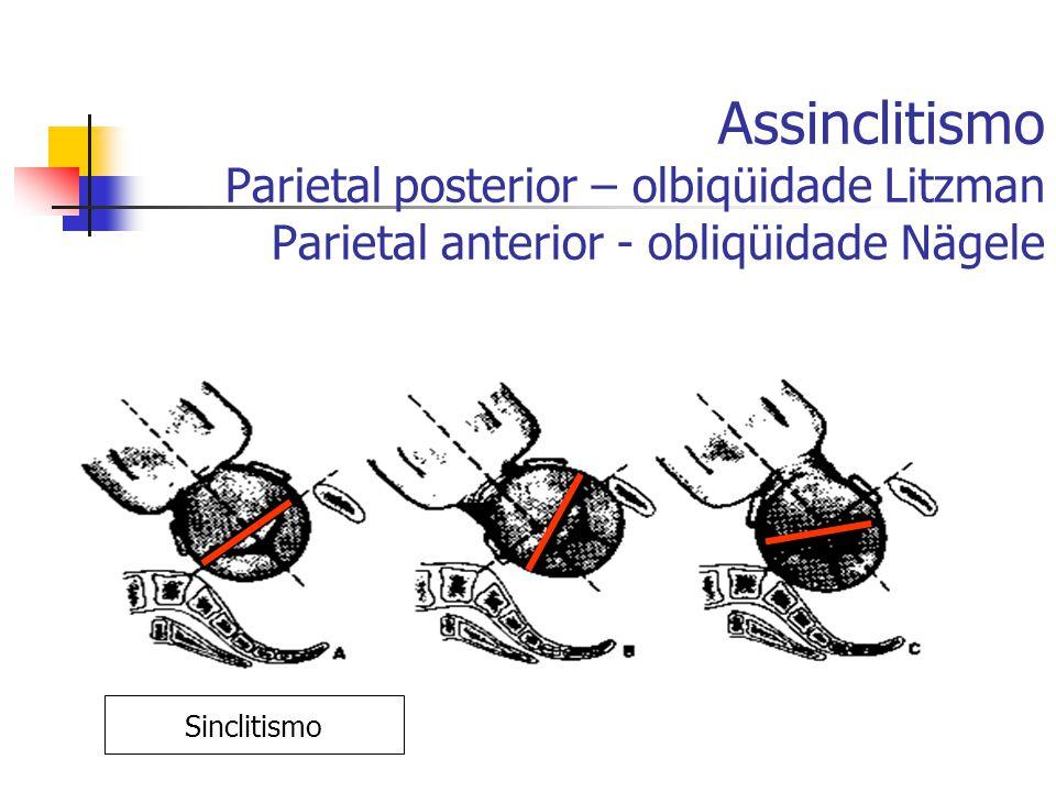 Assinclitismo Parietal posterior – olbiqüidade Litzman Parietal anterior - obliqüidade Nägele