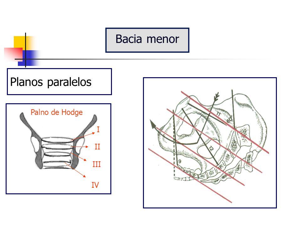Bacia menor Planos paralelos I II III IV Palno de Hodge