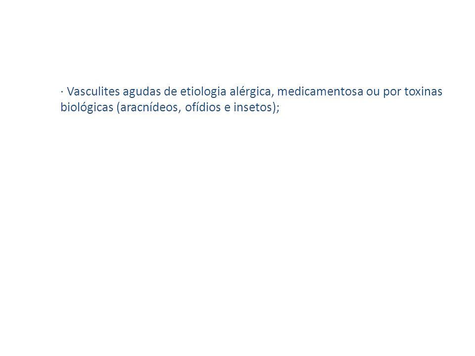 · Vasculites agudas de etiologia alérgica, medicamentosa ou por toxinas biológicas (aracnídeos, ofídios e insetos);