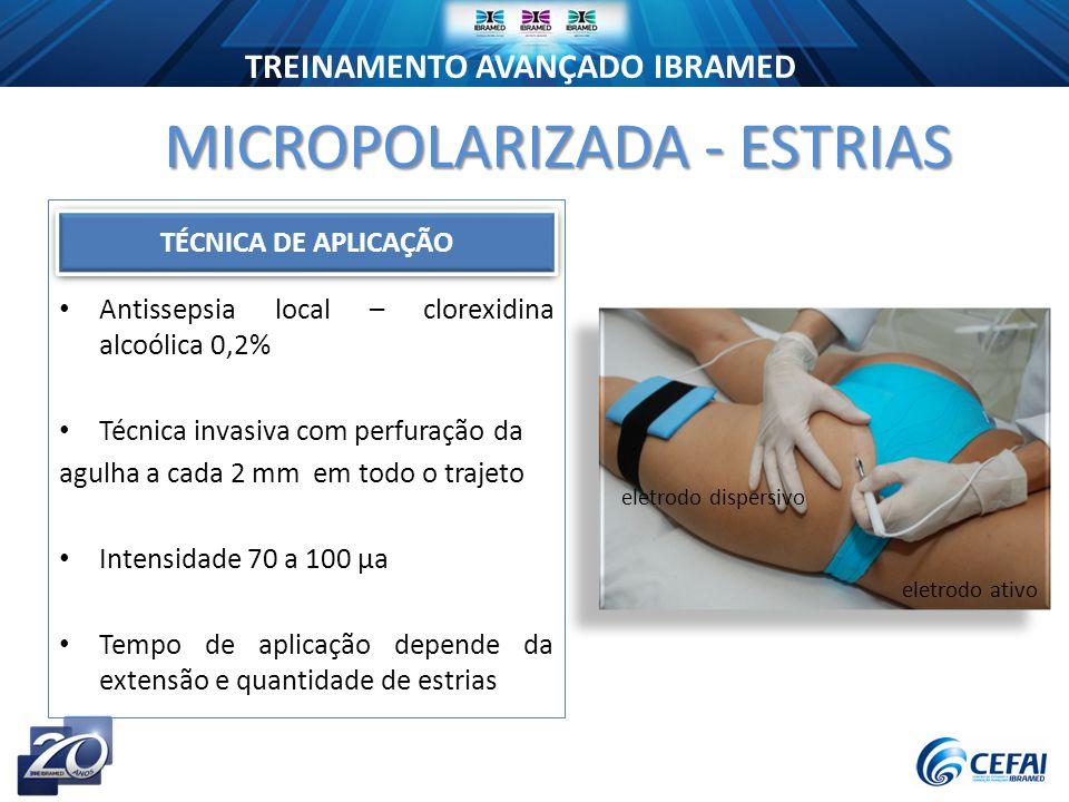 MICROPOLARIZADA - ESTRIAS