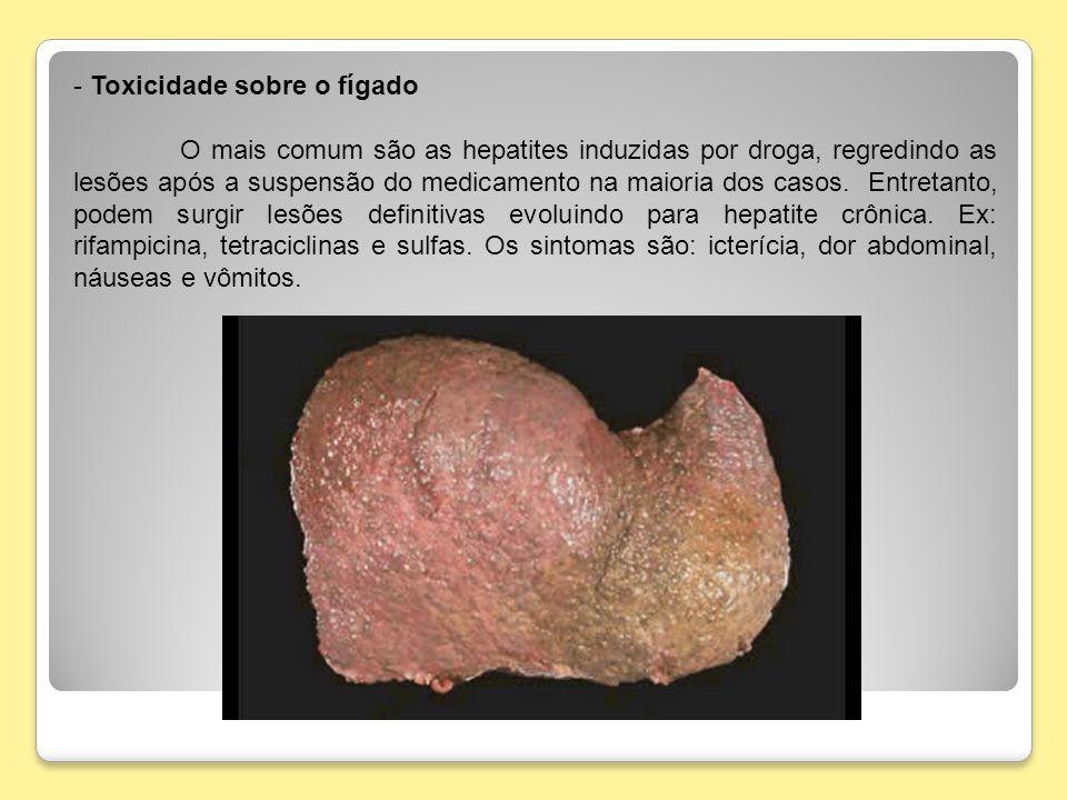 Toxicidade sobre o fígado