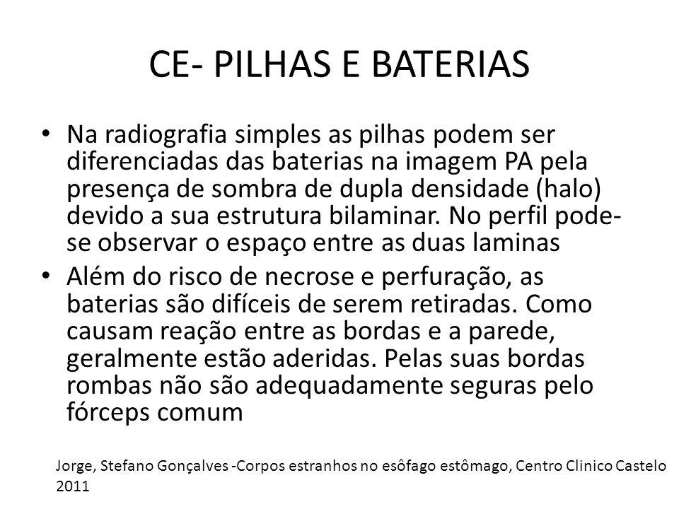 CE- PILHAS E BATERIAS