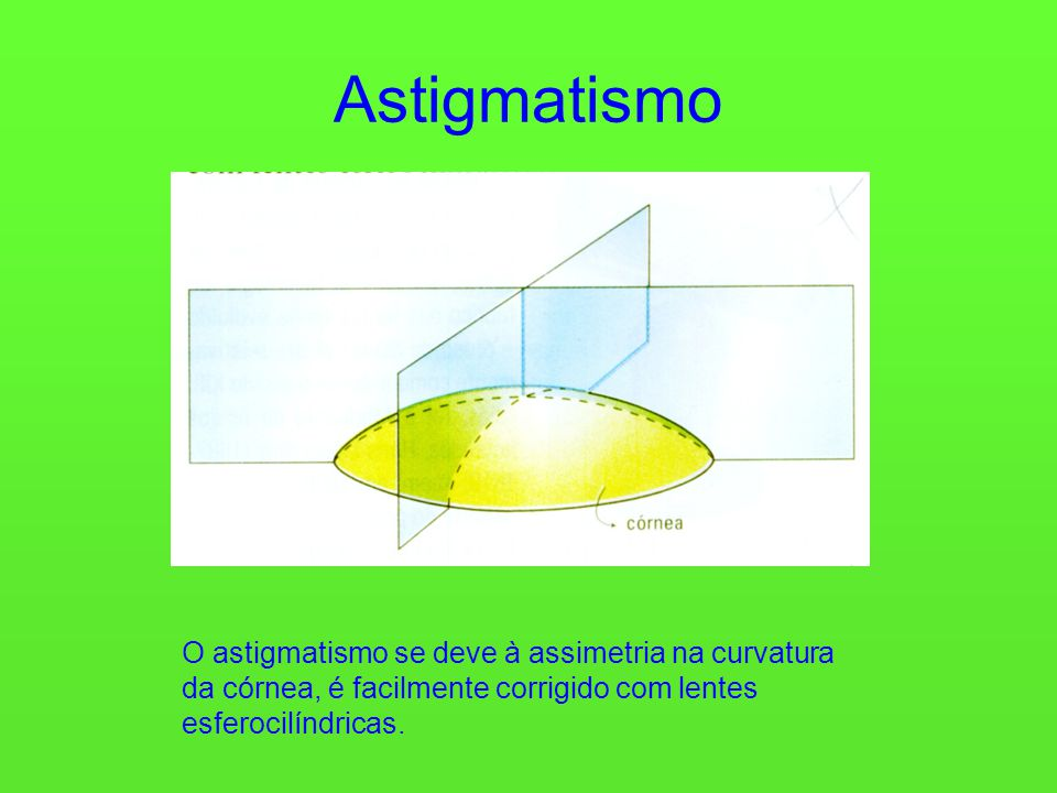 Astigmatismo O astigmatismo se deve à assimetria na curvatura da córnea, é facilmente corrigido com lentes esferocilíndricas.