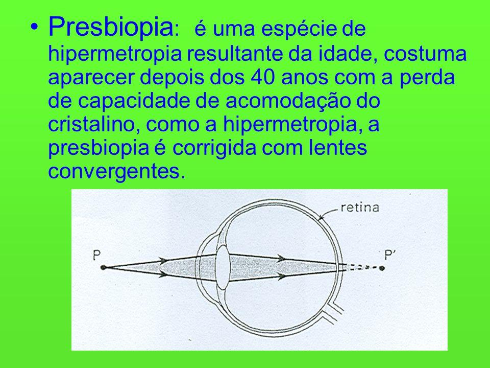 Presbiopia: é uma espécie de hipermetropia resultante da idade, costuma aparecer depois dos 40 anos com a perda de capacidade de acomodação do cristalino, como a hipermetropia, a presbiopia é corrigida com lentes convergentes.