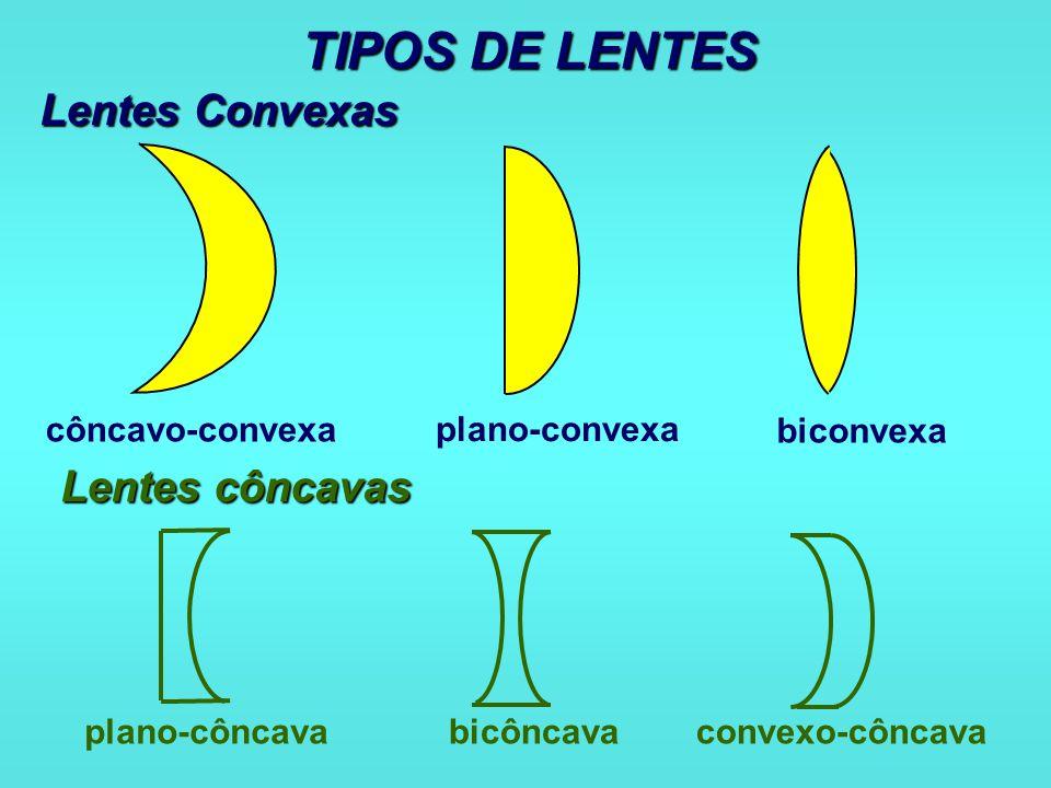 TIPOS DE LENTES Lentes Convexas Lentes côncavas côncavo-convexa