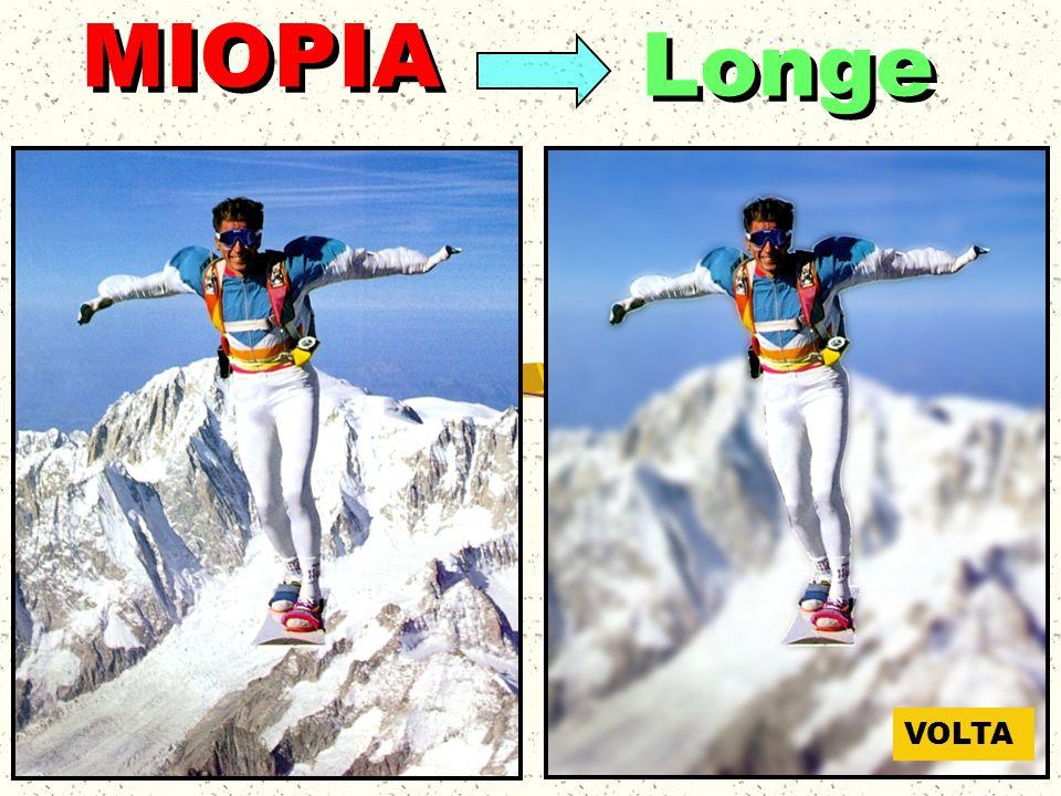 Longe MIOPIA VOLTA