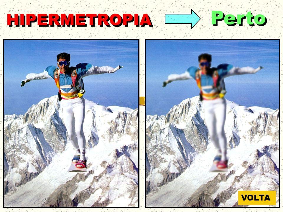 HIPERMETROPIA Perto VOLTA