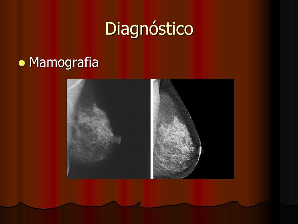 Diagnóstico Mamografia