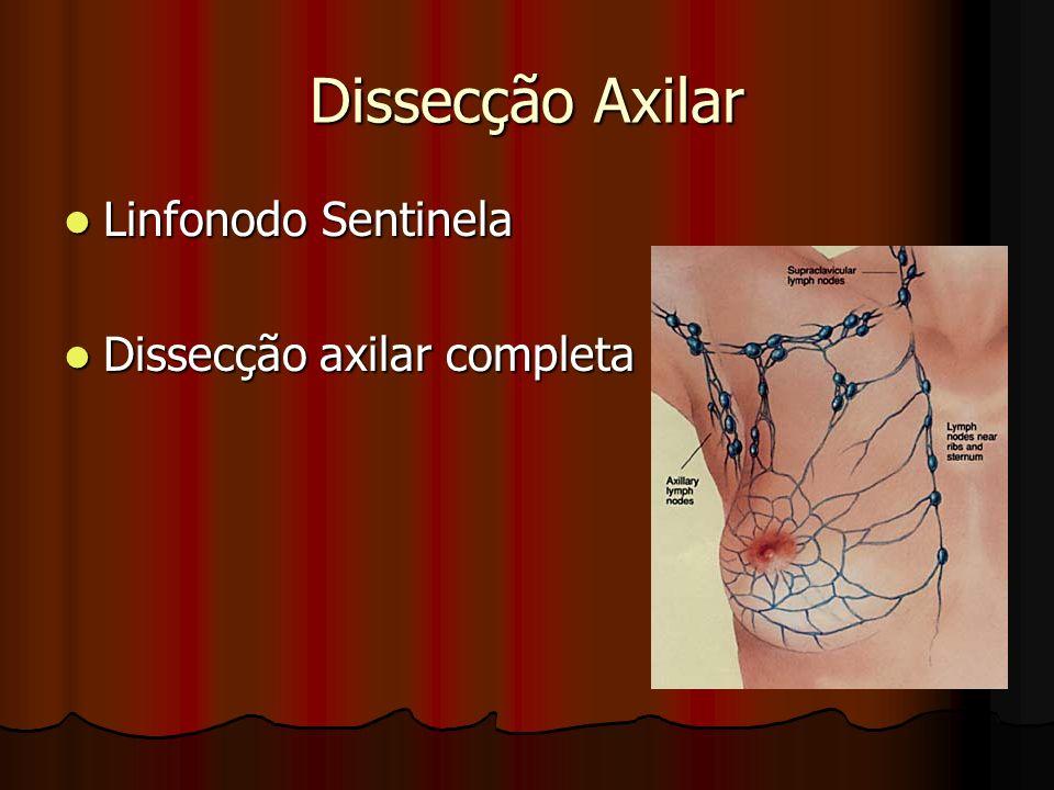 Dissecção Axilar Linfonodo Sentinela Dissecção axilar completa