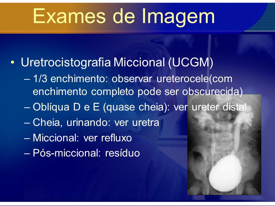 Exames de Imagem Uretrocistografia Miccional (UCGM)