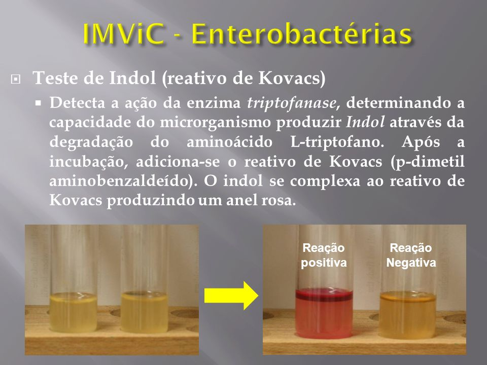 IMViC - Enterobactérias
