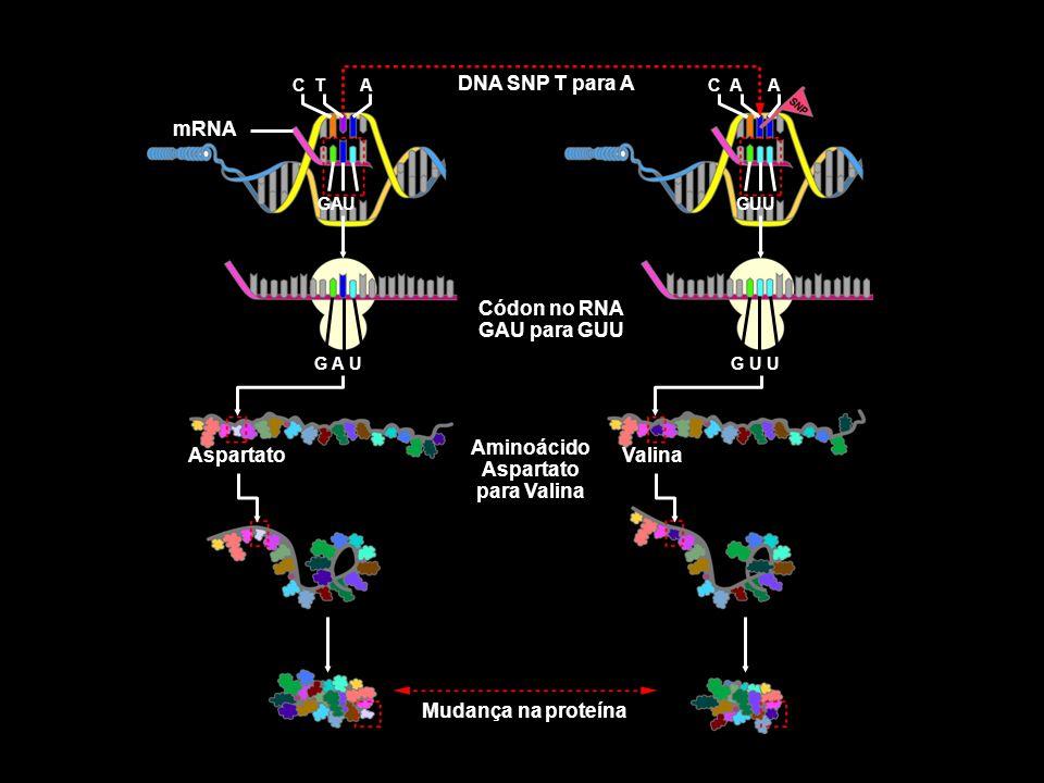 Códon no RNA GAU para GUU Aminoácido Aspartato para Valina