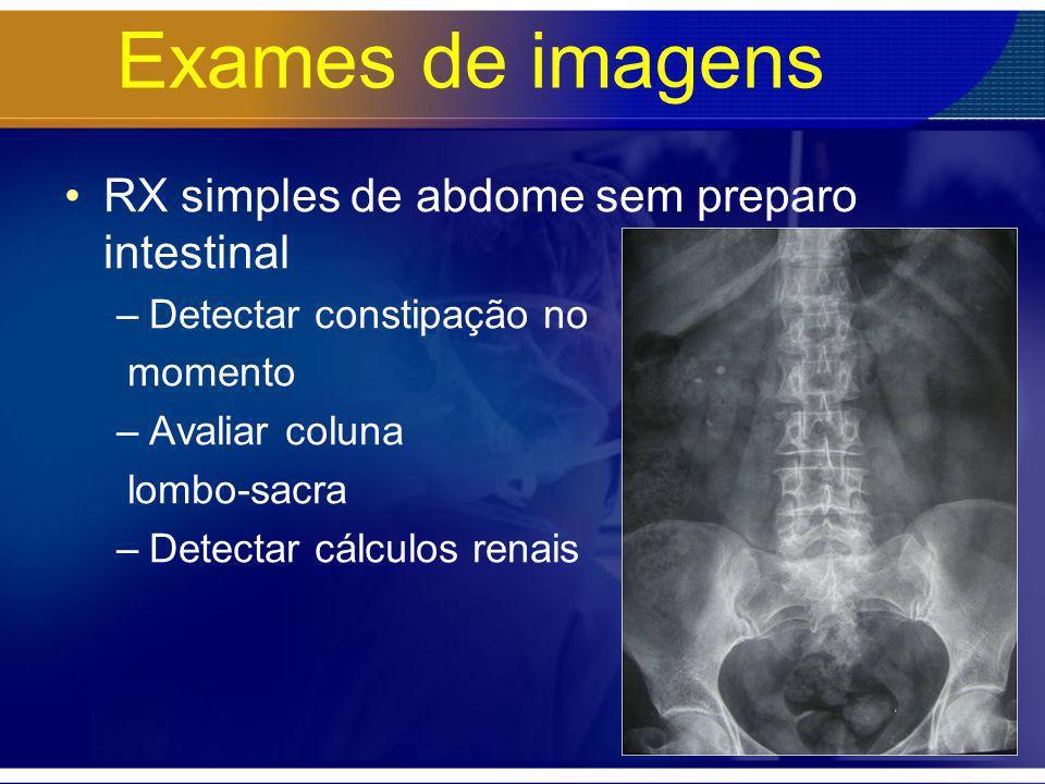 Exames de imagens RX simples de abdome sem preparo intestinal