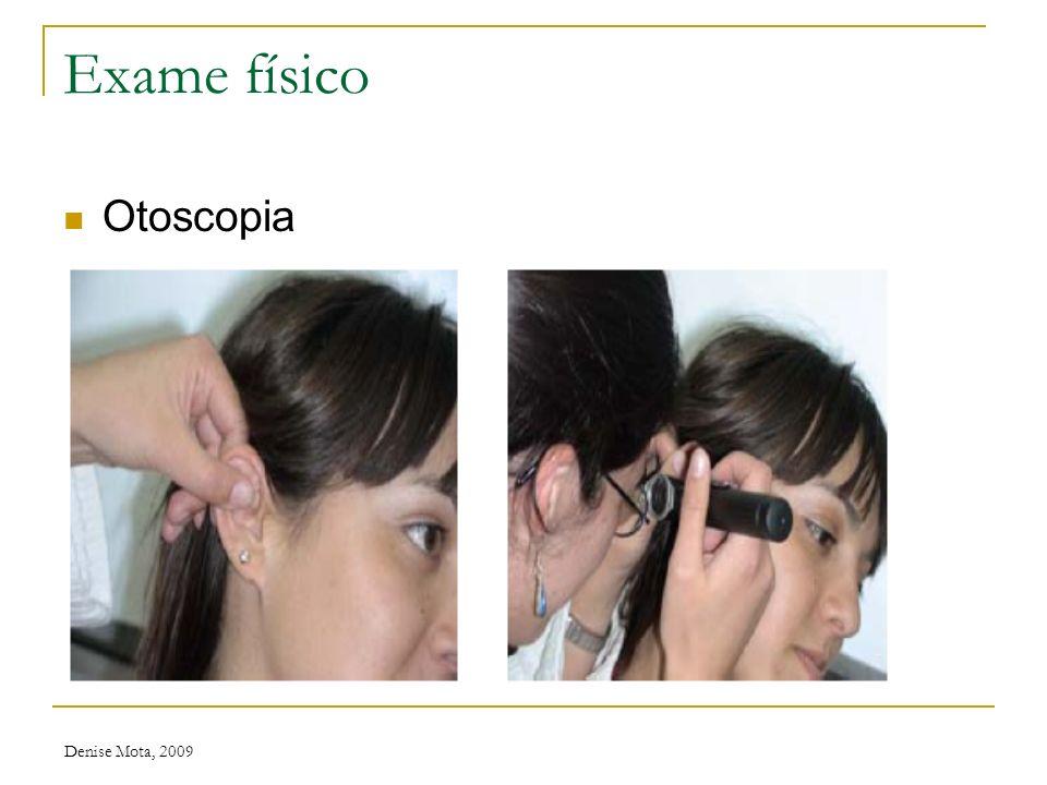 Exame físico Otoscopia Denise Mota, 2009