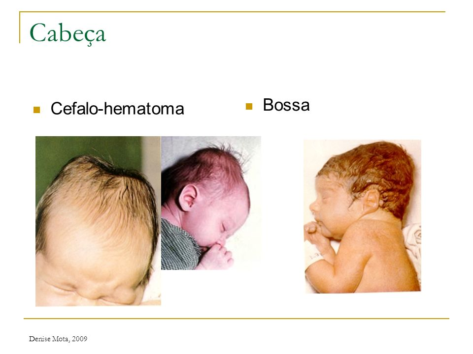 Cabeça Bossa Cefalo-hematoma Denise Mota, 2009