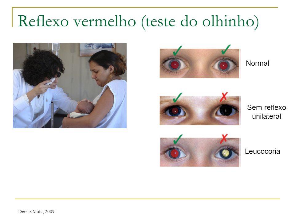 Reflexo vermelho (teste do olhinho)