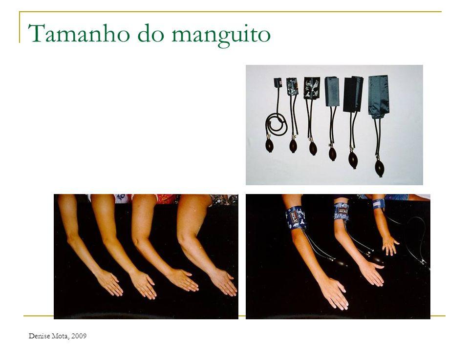 Tamanho do manguito Denise Mota, 2009