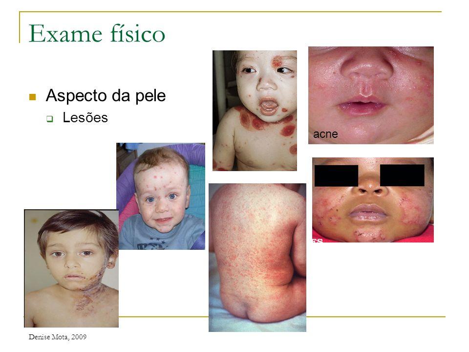 Exame físico Aspecto da pele Lesões acne Denise Mota, 2009