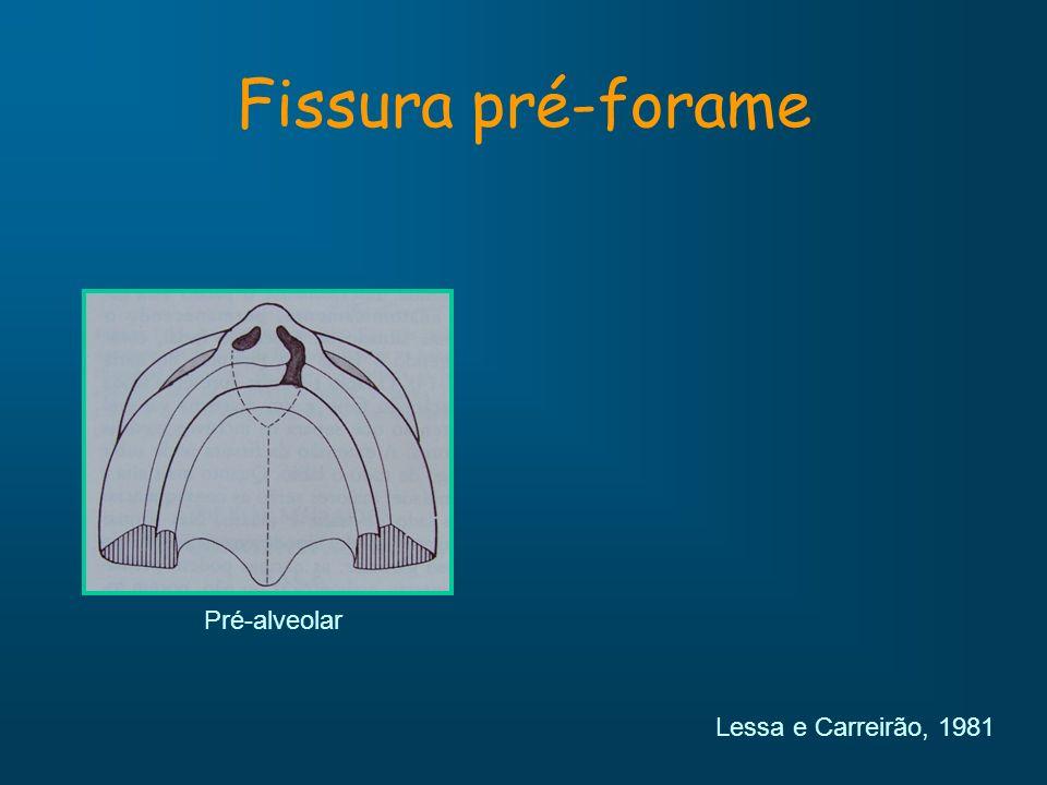 Fissura pré-forame Pré-alveolar Lessa e Carreirão, 1981