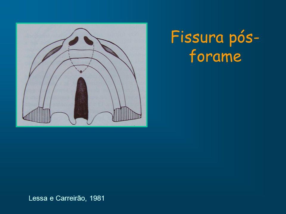 Fissura pós-forame Lessa e Carreirão, 1981