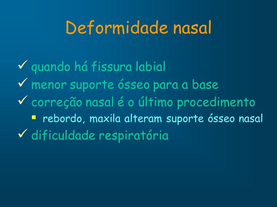 Deformidade nasal quando há fissura labial