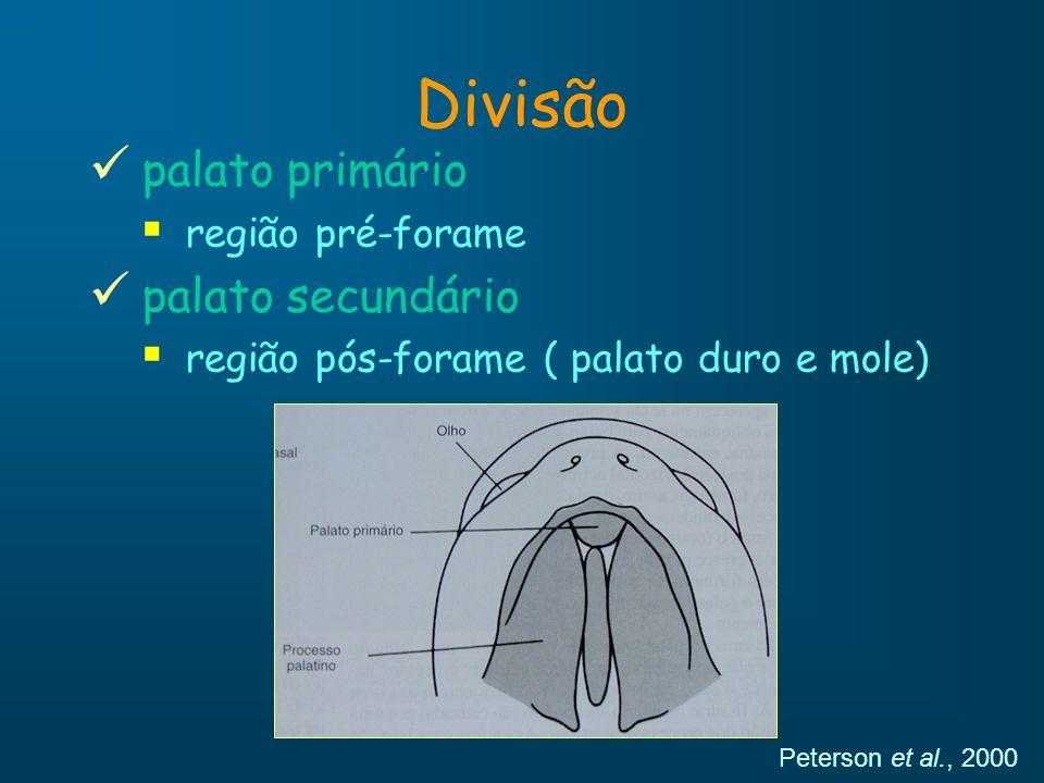 Divisão palato primário palato secundário região pré-forame