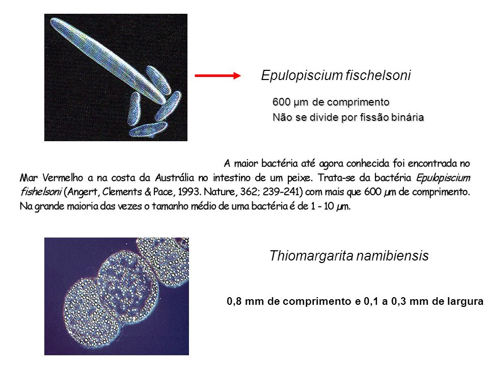 Epulopiscium fischelsoni