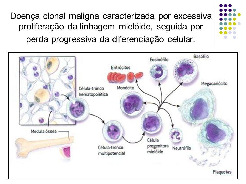Doença clonal maligna caracterizada por excessiva proliferação da linhagem mielóide, seguida por perda progressiva da diferenciação celular.