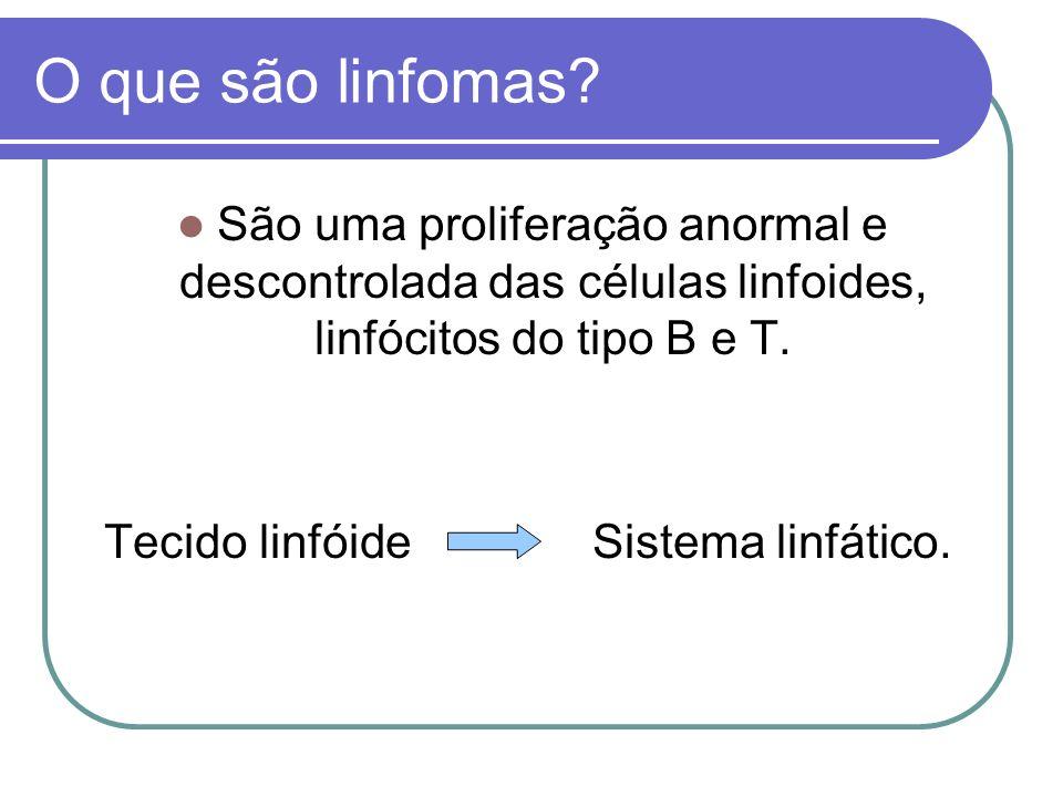 O que são linfomas São uma proliferação anormal e descontrolada das células linfoides, linfócitos do tipo B e T.