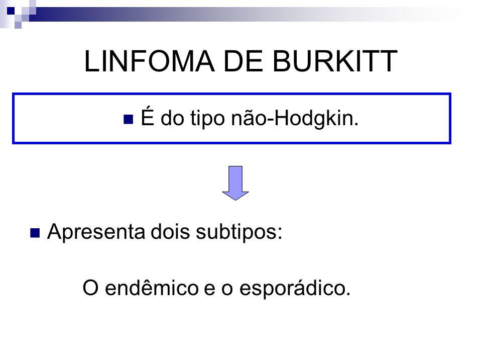 LINFOMA DE BURKITT É do tipo não-Hodgkin. Apresenta dois subtipos: