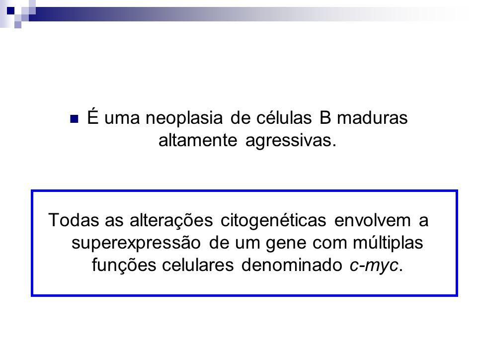 É uma neoplasia de células B maduras altamente agressivas.