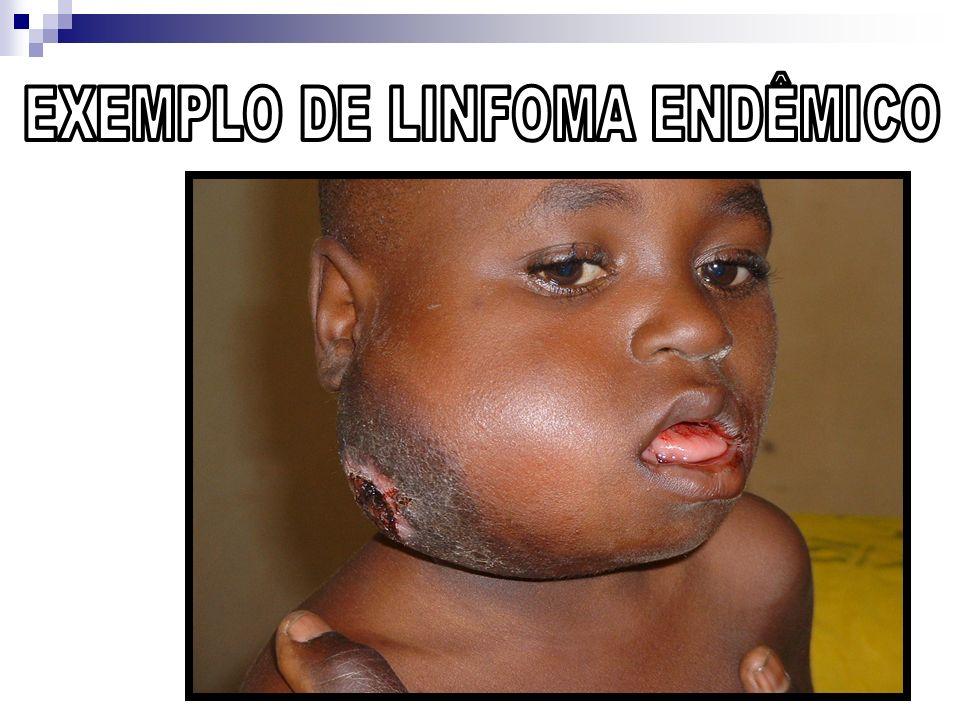 EXEMPLO DE LINFOMA ENDÊMICO