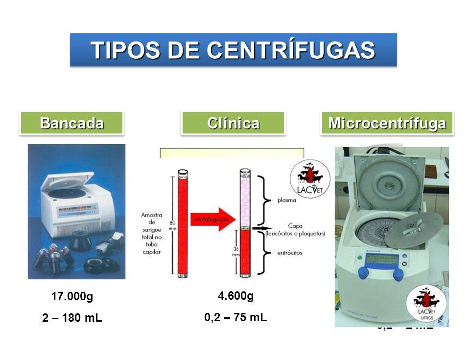 TIPOS DE CENTRÍFUGAS Bancada Clínica Microcentrífuga 17.000g 4.600g