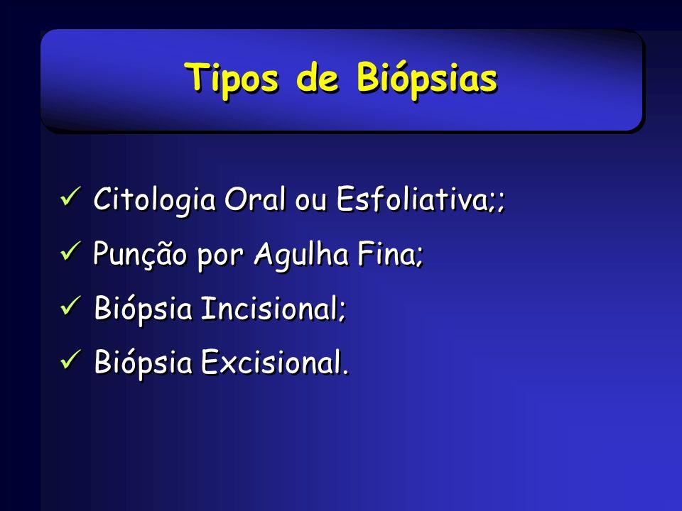 Tipos de Biópsias Citologia Oral ou Esfoliativa;;